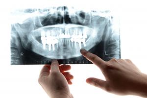 口腔外科なら西村歯科口腔外科クリニックへ